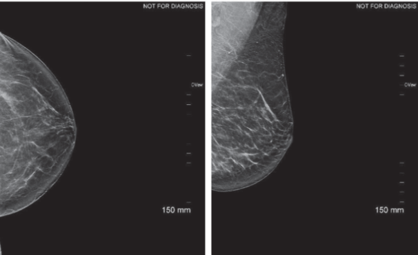 61 yo patient presenting for screening mammography. No report of previous surgery. Architectural distortion identified in both views left breast