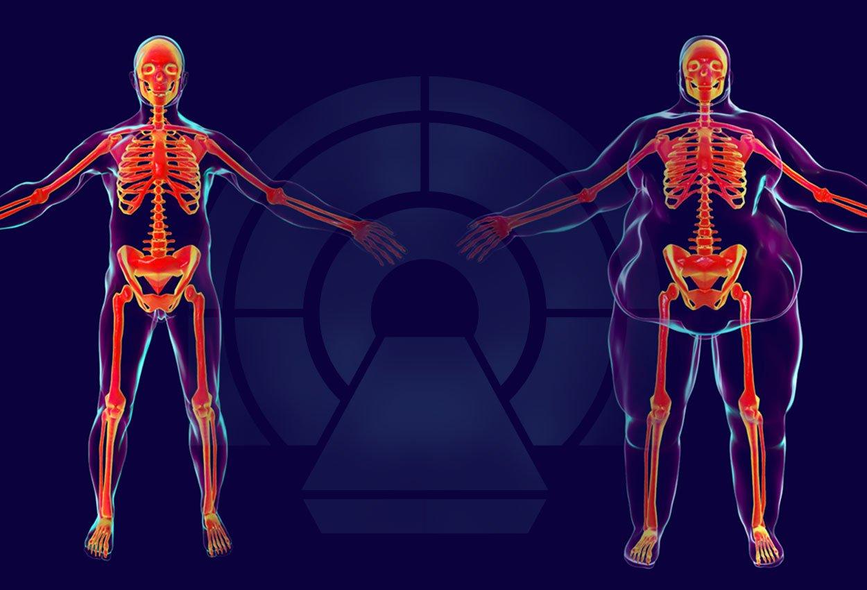 imagingobesepatients