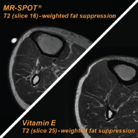 mr-spot-vs-vitamin-e-comparison