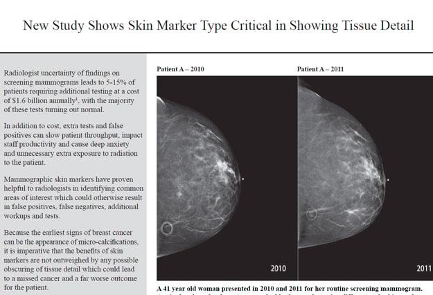 tissue_detail_study_thumbnail