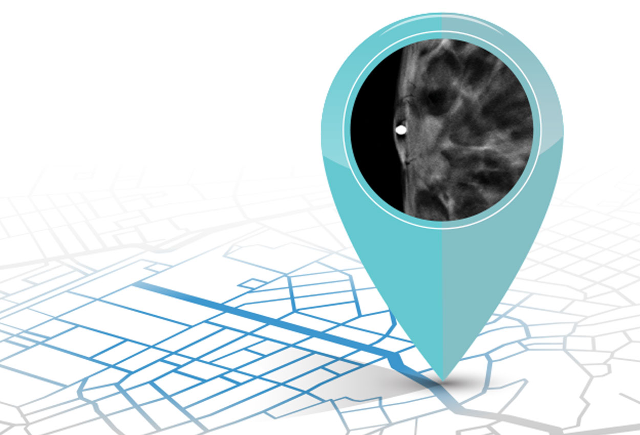 map_nipple_image_cvrimg
