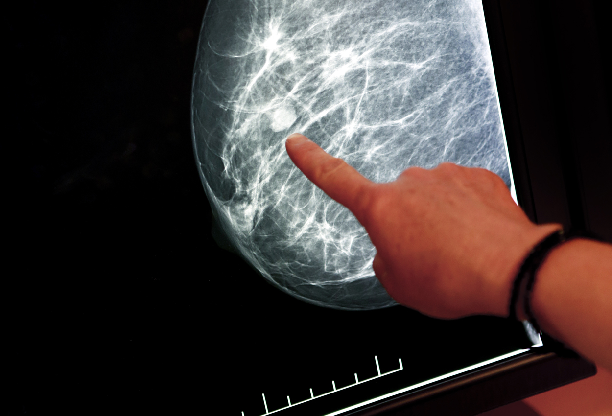 Beyond the Mammography Reading Room: Recognizing Radiologists Who Inspire and Empower