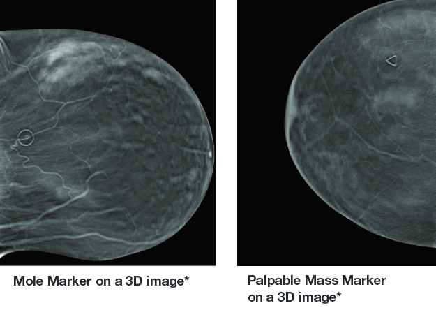 Are Skin Markers Still Relevant in the Age of 3-D Mammography?