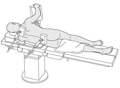 Lateral Decubitus position