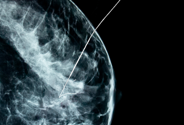 Overcoming Challenges with Wire Movement in Breast Localization Procedures