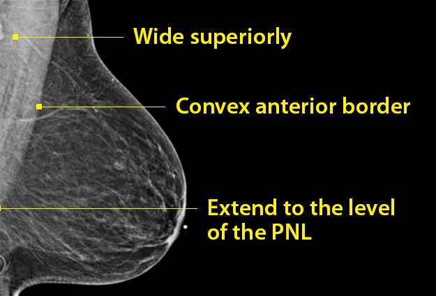 Capturing the Elusive Pectoralis Major in Mammography