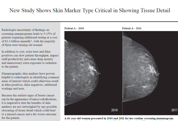 Why all Radiologists Need Uniform-Density Skin Markers