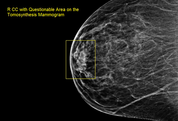 Take Control - Mark Those Nipples During Your Mammogram