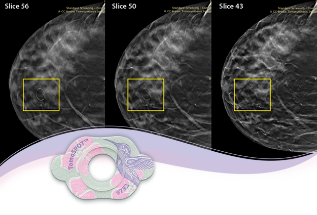 New TomoSPOT Skin Markers Help Reduce Risk of False Negatives & Positives in 3D Mammography