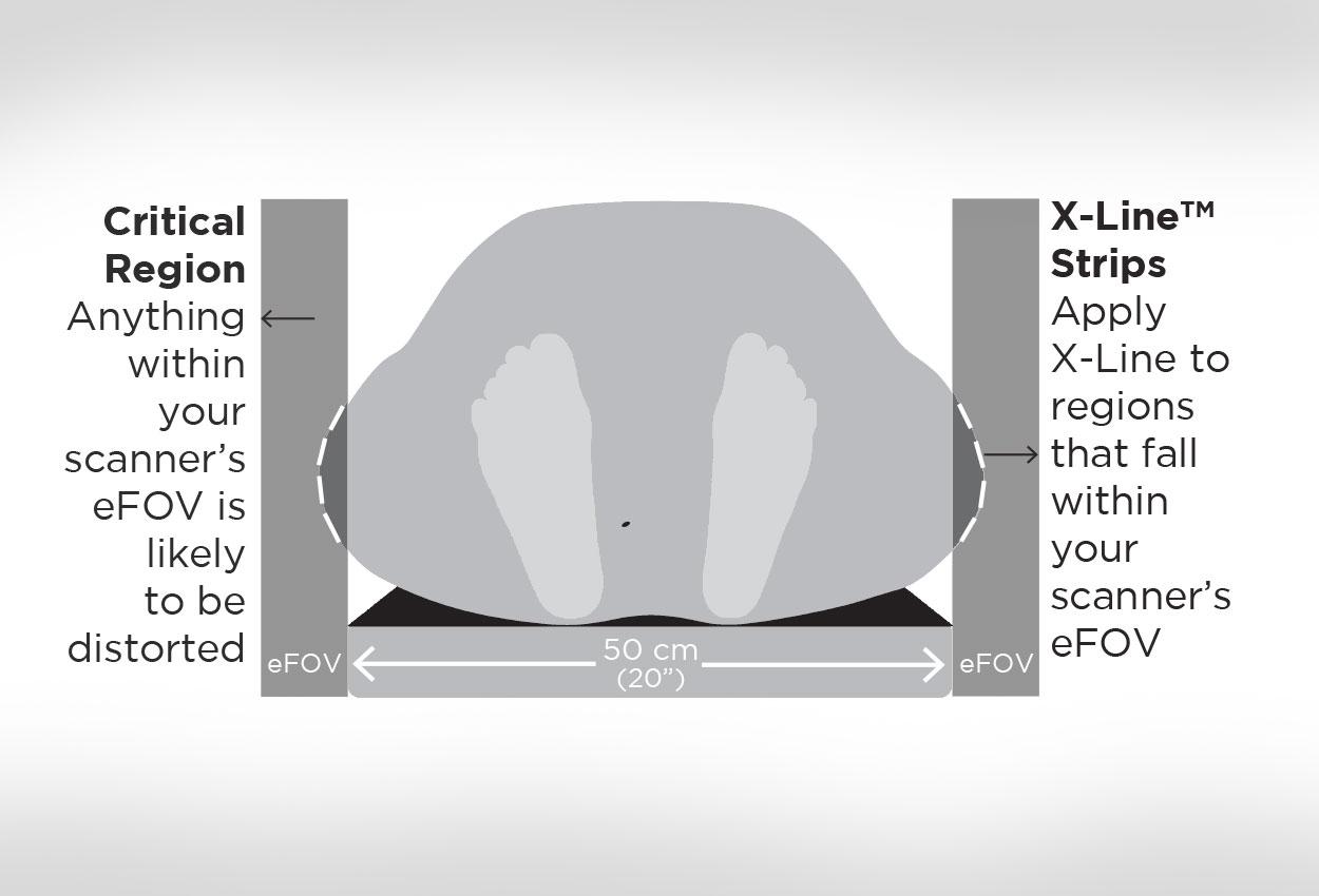 X-Line, A Dosimetrist's New Best Friend in the eFOV