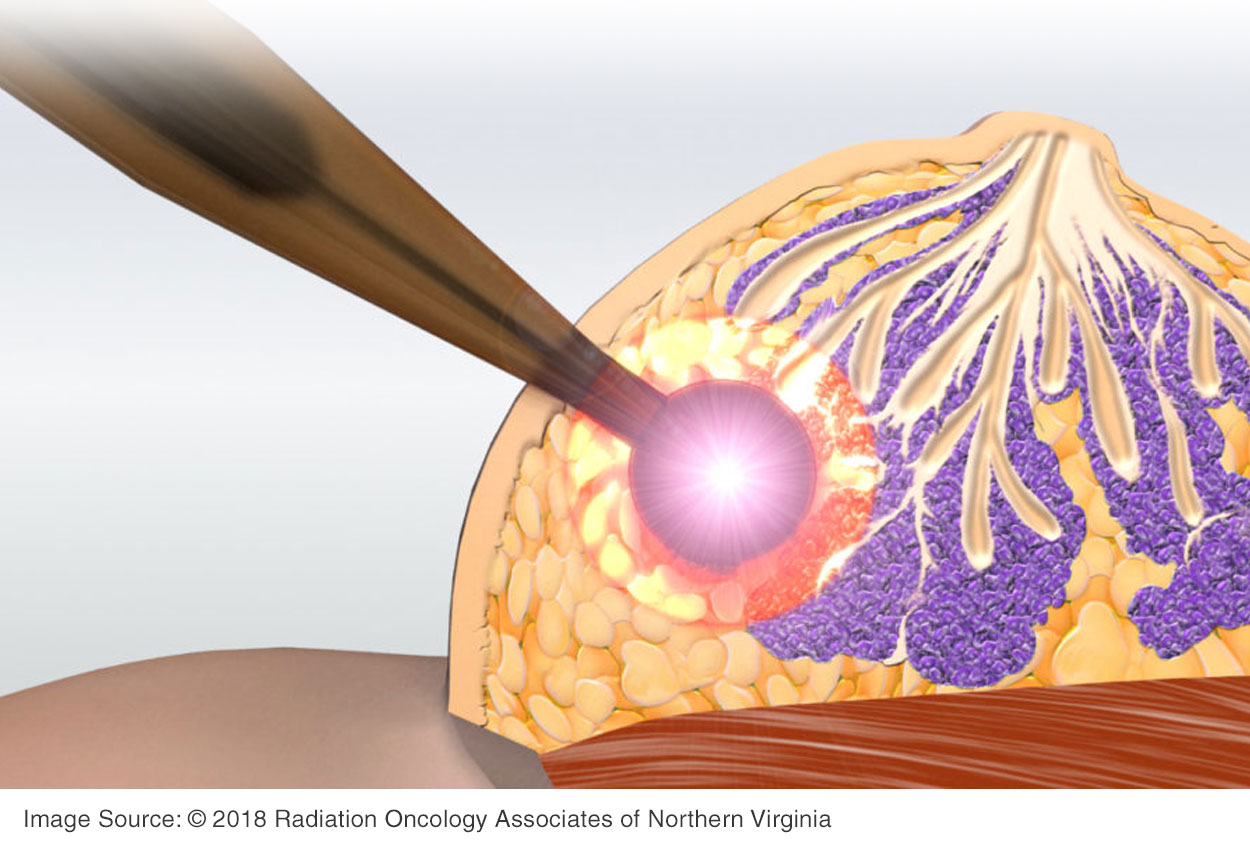 Is Targeted Intraoperative Radiotherapy Treatment the Future for Treating Breast Cancer?